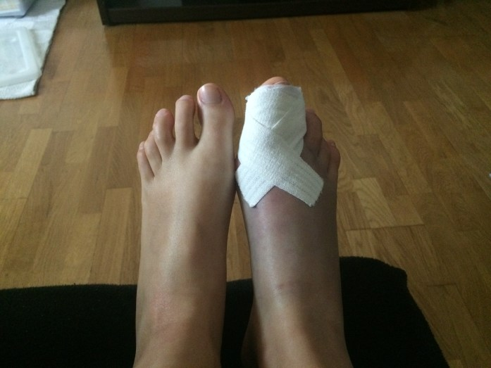 double fracture gros orteil