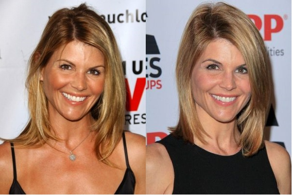 Lori Loughlin Plastic Surgery Before And After Celebrity