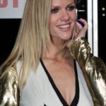 Brooklyn Decker Plastic Surgery Before and After