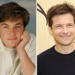Jason Bateman Plastic Surgery Before and After