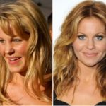 Candace Cameron Plastic Surgery Before and After