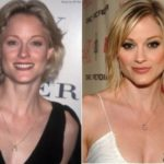 Teri Polo Plastic Surgery Before and After