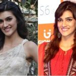 Kriti Sanon Plastic Surgery Before and After