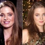 Erika Kaar Plastic Surgery Before and After