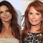 Roma Downey Plastic Surgery Before and After
