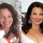 Fran Drescher Plastic Surgery Before and After