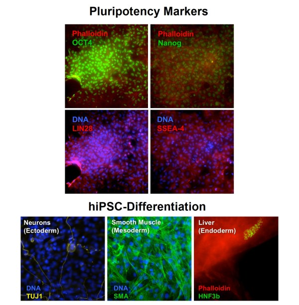 HiPSC   Human Induced Pluripotent Stem Cells   Cell ...