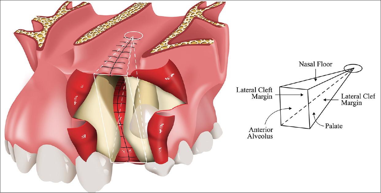 Diagram Of Mouth Alveolar Ridge