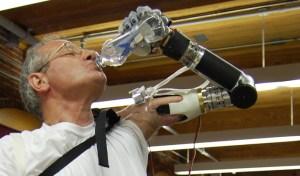 Düşünce gücüyle kontrol edilen kol protezi