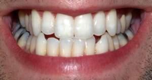 7 problemas como consecuencia de los dientes torcidos