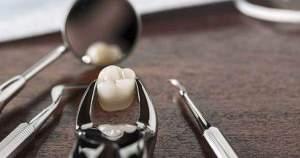 Alternativas a la extracción de dientes