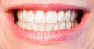 Atención: tener dientes blancos no significan que estén sanos