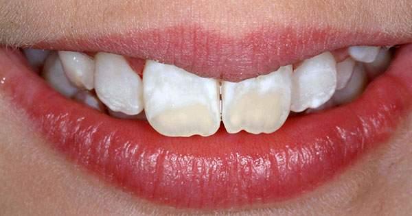 Causas de las manchas en los dientes
