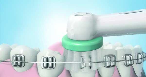 Cepillado Dental Correcto