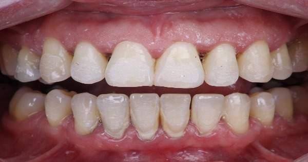 ¿Cómo funciona la limpieza dental con ultrasonido?