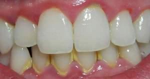Conoce cuál es el principal problema dental