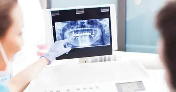 Conoce la Importancia de las Radiografías dentales