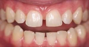 Conoce por qué se separan los dientes