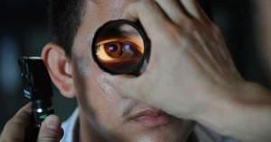 ¿Conoces la queratitis o la úlcera corneal?