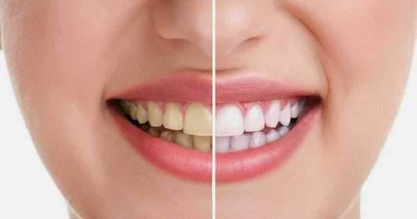 Cremas dentales blanqueadoras ¿Realmente funcionan