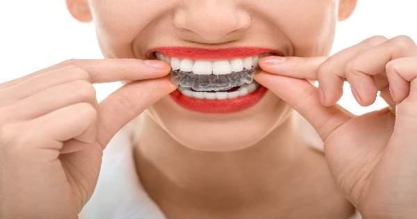 ¿Cuál es el propósito de los retenedores dentales
