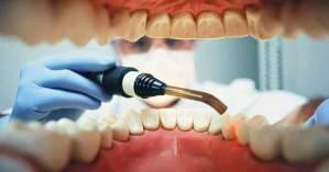 El miedo al dentista complica el trabajo dental