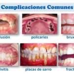 Las enfermedades bucales más comunes
