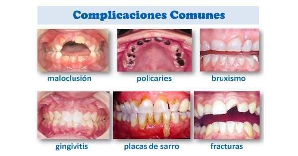 Enfermedades Bucales Dentales Comunes
