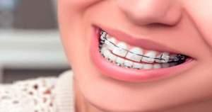 ¿Es viable la ortodoncia en adultos mayores de 50 años?