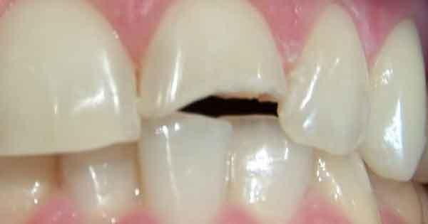 Fractura de dientes