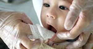 Higiene Bucal del Bebé