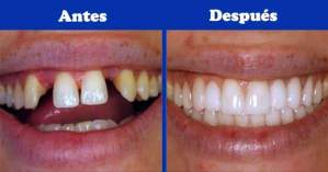 Y una vez colocados los implantes dentales, ¿qué sigue?