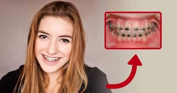 La ortodoncia previene las enfermedades periodontales