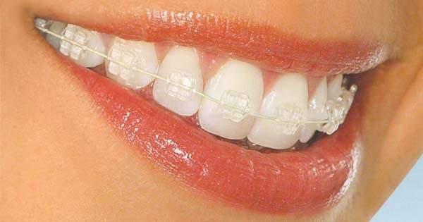 Ortodoncia Brackets Transparentes
