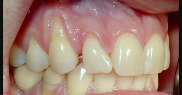 Periodontitis síntomas y causas