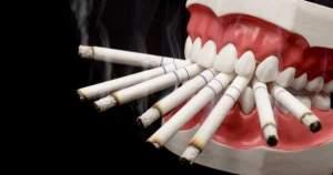¿Por qué fumar es malo para tu salud oral?