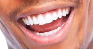 ¿Por qué se debilitan los dientes?