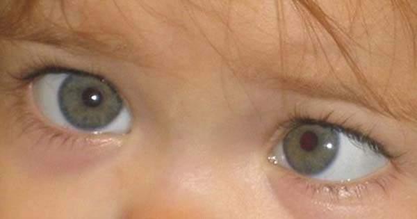 Problemas Vision Niños