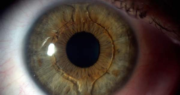 ¿Qué son los lentes de contacto implantables