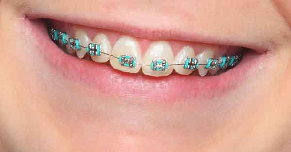 Tratamiento Ortodoncia Encias
