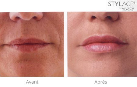 stylage-special-lips-before-after