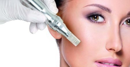 Illustration microneedling