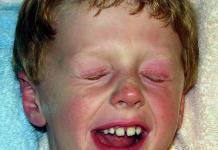 Les allergies graves sont dues aux allergères - Centre Info Santé - Centreinfosante.com