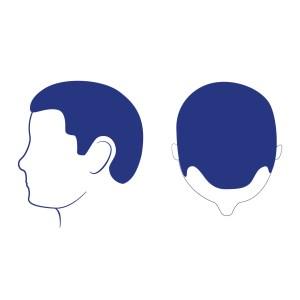 Phase 1 - Très peu ou pas de dégarnissement de la ligne des cheveux, donc aucun traitement n'est requis. Il n'est pas nécessaire de vous inquiéter, sauf si vous avez des antécédents familiaux de calvitie. Si vous avez des antécédents familiaux de calvitie type masculine, vous devez surveiller de près la situation et décider du moment approprié pour suivre un éventuel traitement.