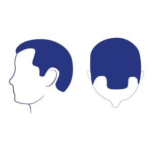 Phase 2 - Dégarnissements triangulaires et symétriques des zones temporales frontales. La perte de cheveux reste en avance sur une ligne de plusieurs centimètres devant les oreilles. Chute des cheveux de l'avant du cuir chevelu et la partie centrale est moins denses. Les premiers signes de la calvitie sont apparents.