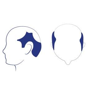 Phase 6 - La bande de cheveux qui était visible auparavant sur la couronne est dorénavant disparu, il ne reste que quelques cheveux. Les tempes à l'avant le vertex sont maintenant regroupées en une seule zone. La perte de cheveux sur les côtés la tête commence à s'élargir.
