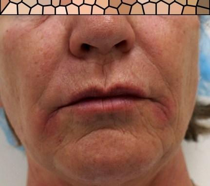 Filler labbra di acido ialuronico