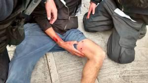 Agresion policiaca en CU 02