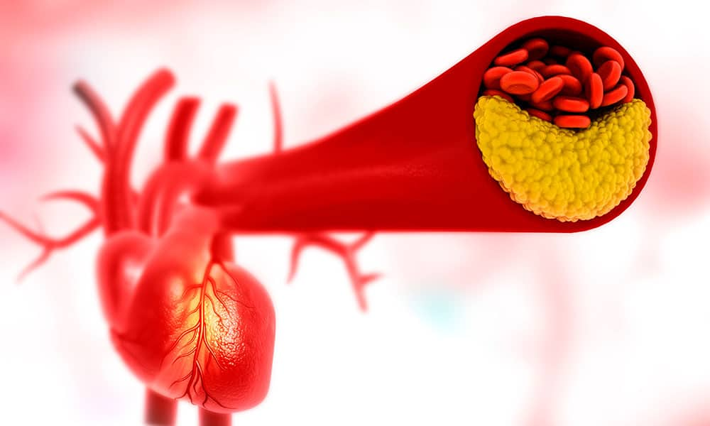 Tres-aspectos-que-debes-saber-sobre-la-prevencion-de-la-aterosclerosis.jpg?fit=1000%2C600&ssl=1
