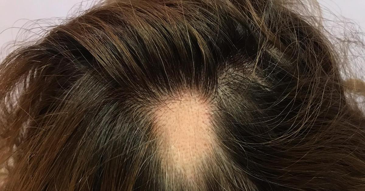 alopecia-covid-19.jpg?fit=1200%2C630&ssl=1